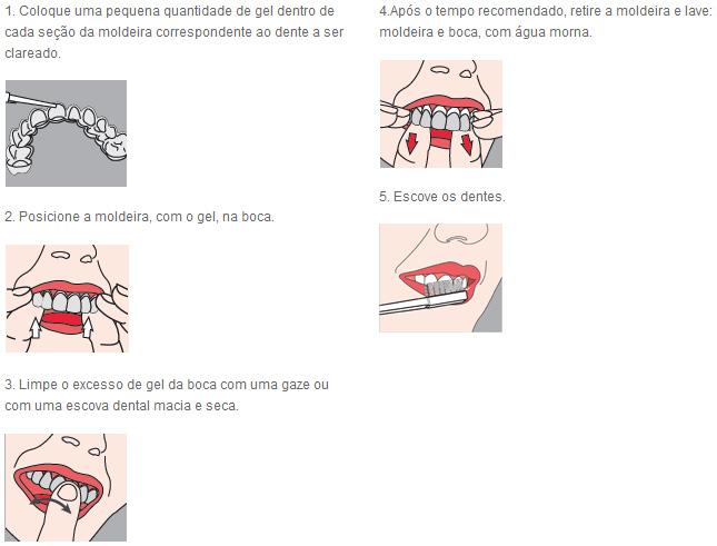 Clareador Dental Pola Night 22 Reposicao Dental Brasileira